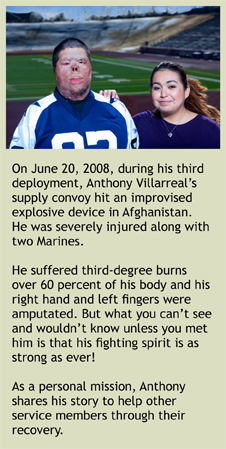 Anthony Villarreal's Story: On June 20, 2008, during his third deployment, Anthony Villarreal's supply convoy hit an improvised explosive device in Afghanistan. He was severely injured along with two Marines. He suffered third-degree burns over 60 percent of his body and his right hand and left fingers were amputated. But what you can't see and wouldn't know unless you met him is that his fighting spirit is as strong as ever! As a personal mission, Anthony shares his story to help other service members through their recovery.